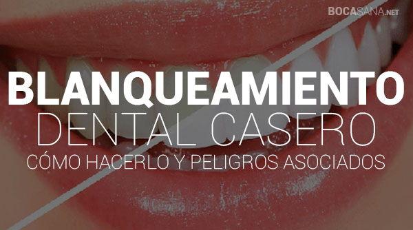 blanqueamiento dental casero y peligros