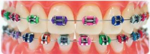 brackets metalicos colores