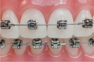 brackets metalicos mini