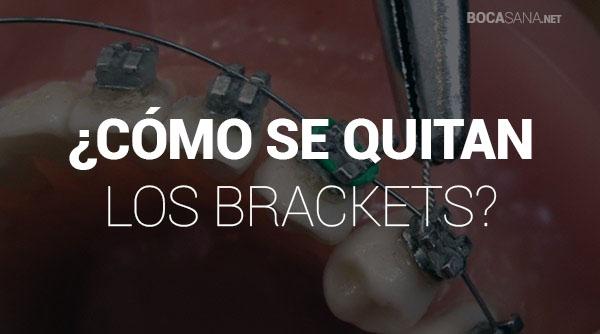 cómo se quitan los brackets