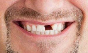 perdida piezas dentales - cancer de lengua