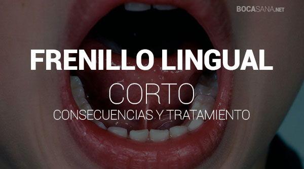 Frenillo Lingual Corto