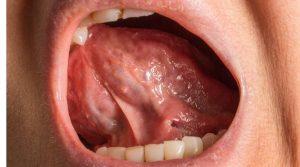 herida en frenillo boca
