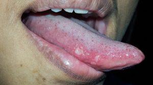 llagas en lengua - causas y tratamientos