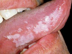 manchas blancas o rojas en lengua