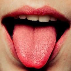 cáncer en la lengua