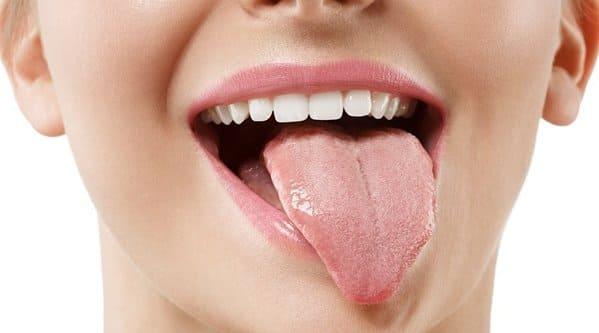 causas de la lengua amarilla