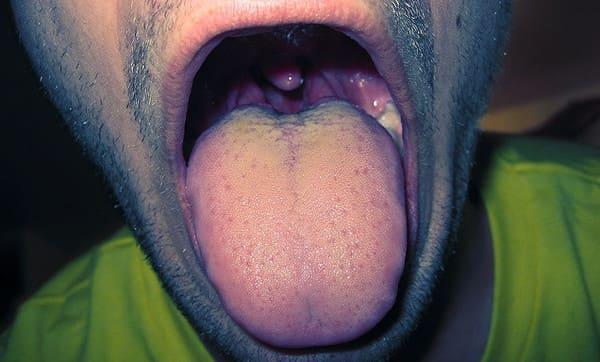 sintomas de la glositis