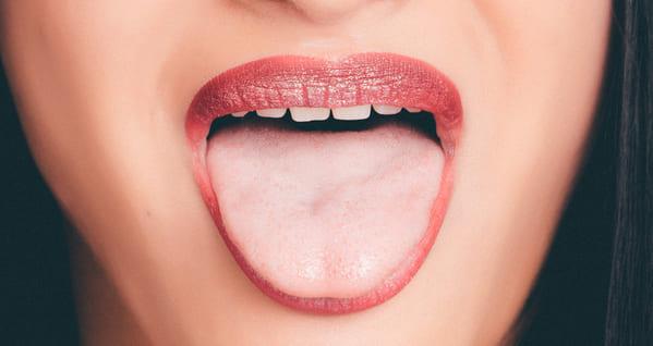 lengua hinchada o glositis