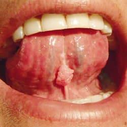 papiloma oral