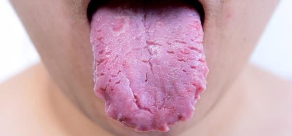 por qué tengo la lengua agrietada