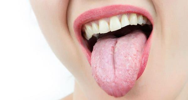 que es la lengua saburral