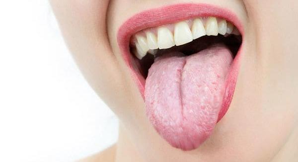 sintomas de la lengua amarilla