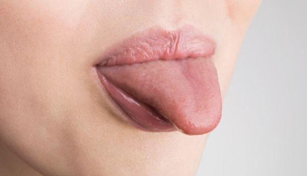 tratamiento y remedios de la lengua amarilla