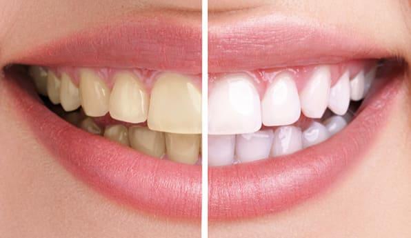 dientes con blanqueamiento dental