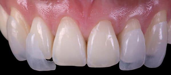 carillas dentales de cerámica