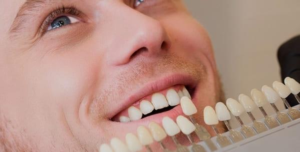 como se ponen las carillas dentales