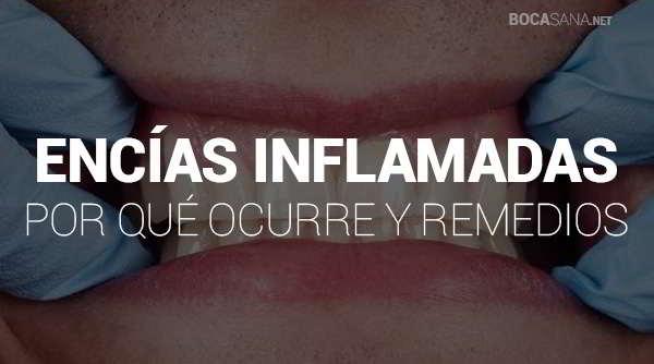 encías inflamadas sintomas y remedios
