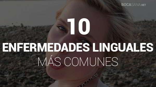 Enfermedades de la Lengua Más Comunes