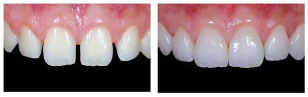 las carillas dentales mejoran el aspecto