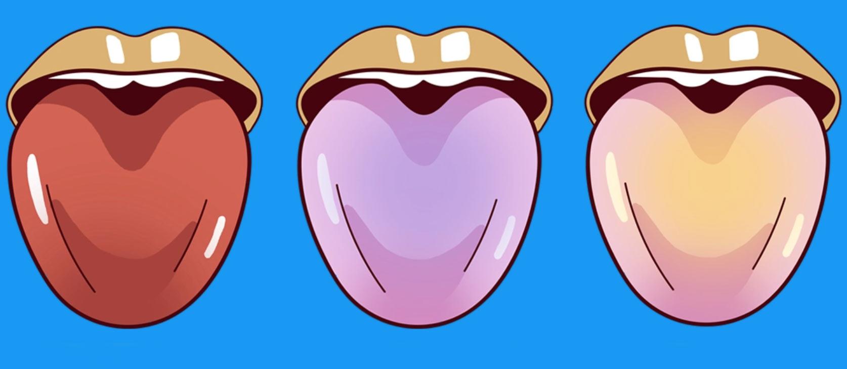 imagen con lenguas que muestran enfermedades