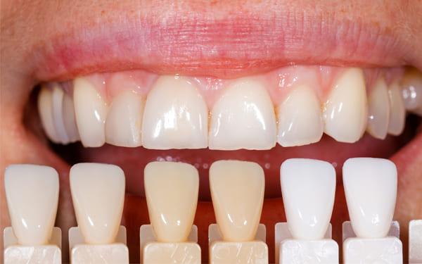 carillas de composite para arreglar dientes