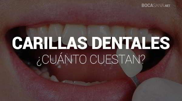 cuanto cuestan las carillas dentales