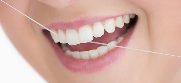 cuidado de las carillas dentales