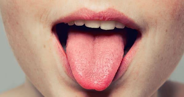 enfermedades que se detectan en la lengua