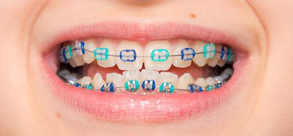ortodoncia y encias retraidas
