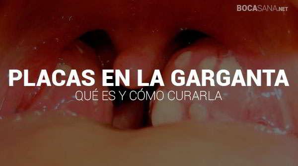 placas en la garganta