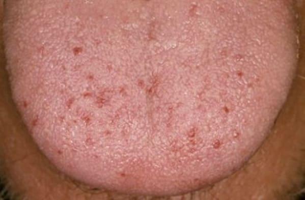 que son los puntos rojos en la lengua