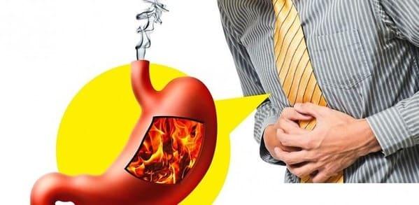 reflujo gastrico