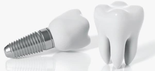 cuidados de implantes dentales