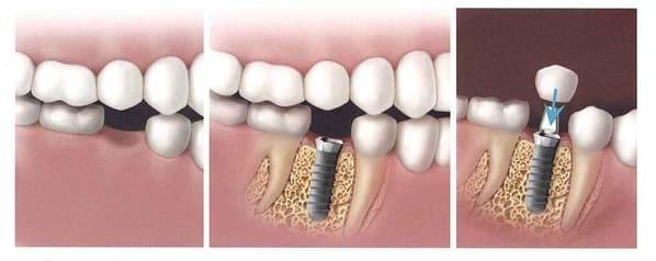 fases de implantes dentales