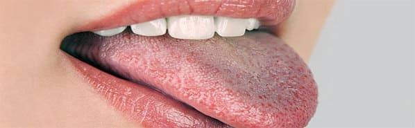 granos en la parte posterior de la lengua