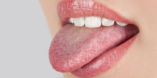 hongos en la lengua