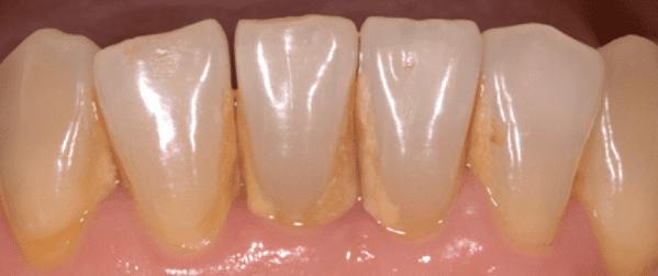 que es el sarro dental