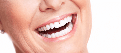 quienes son aptos para implantes dentales
