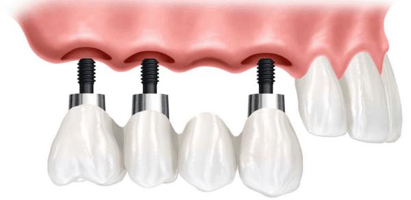 se notan los implantes dentales