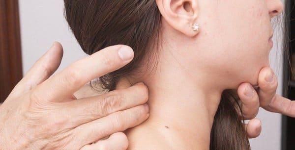 sintomas faringitis streptococica