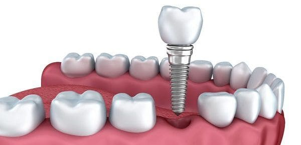 son seguros los implantes dentales