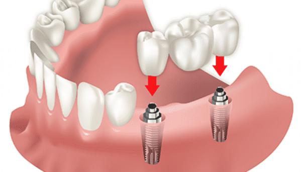 tipos de implantes dentales articulos