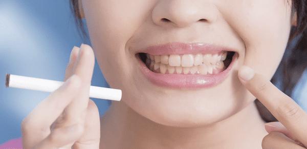 causas de enfermedad periodontal
