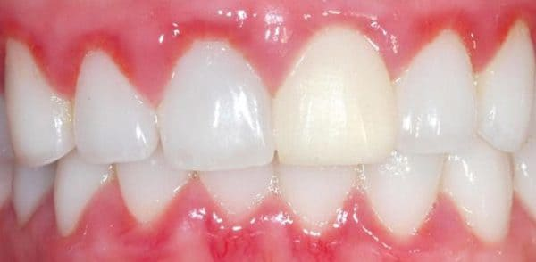 gingivitis y sensibilidad dental