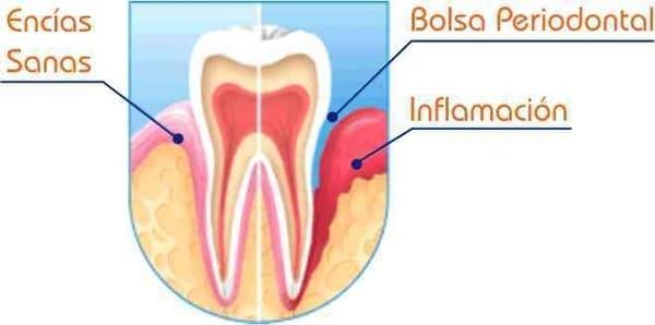 que es la enfermedad periodontal