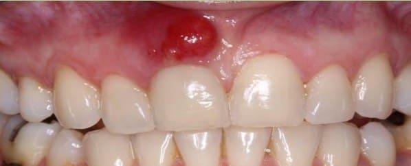 que es un absceso dental