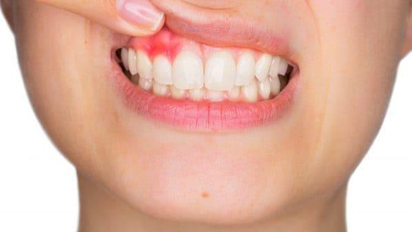 sintomas de absceso dental