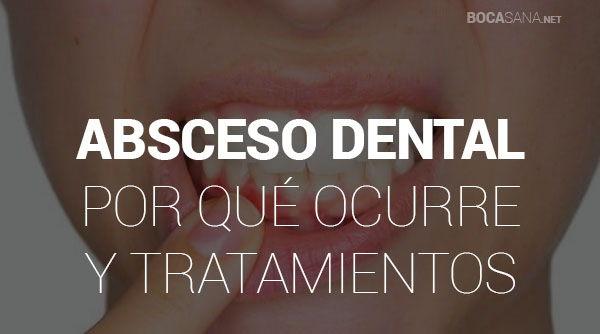 absceso dental por que ocurre