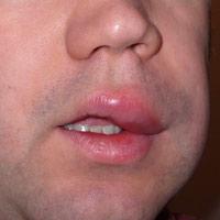 angioedema labio